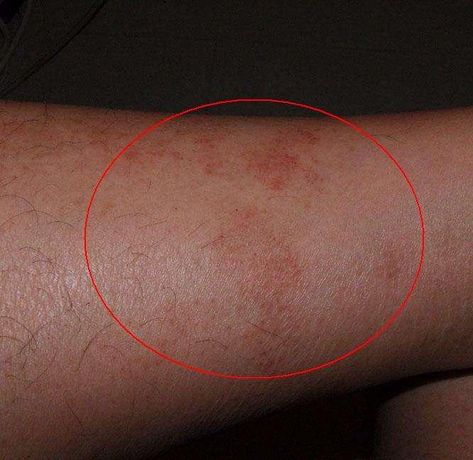 湿疹是什么引起的