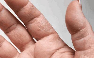 女性患手癣的主要症状是什么