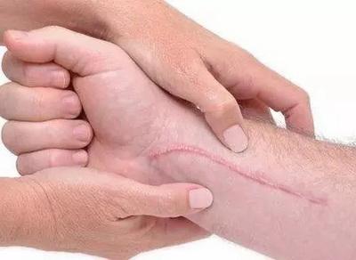 疤痕疙瘩的症状有哪些