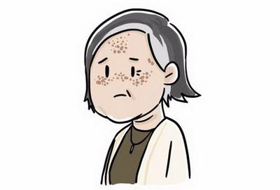 黄褐斑有什么临床表现
